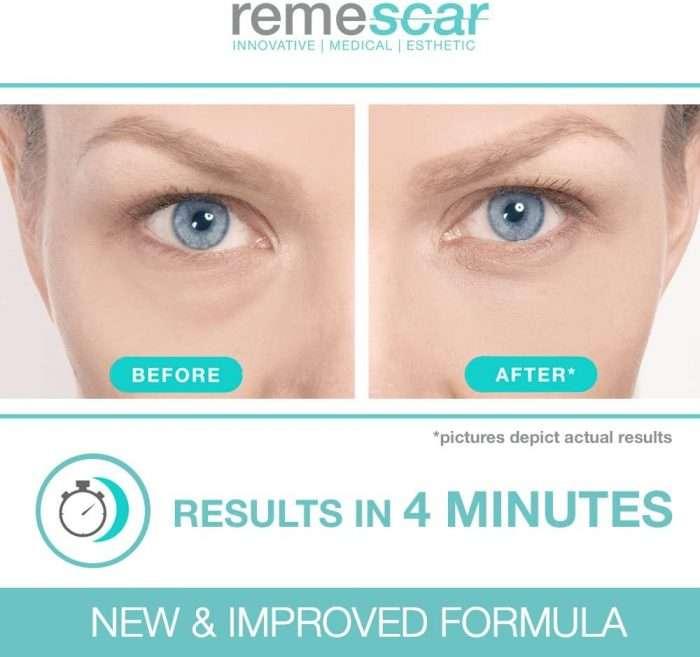 Remescar- Tratamiento instantáneo. Crema para las bolsas de los ojos, formula mejorada antes y después